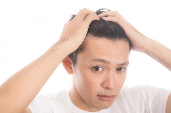 男性必見!【ハゲ】抜け毛薄毛の原因追求!①