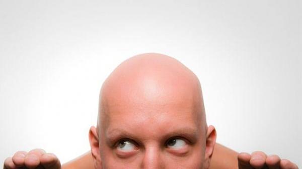 薄毛で悩んでいる方へ朗報です📣✨