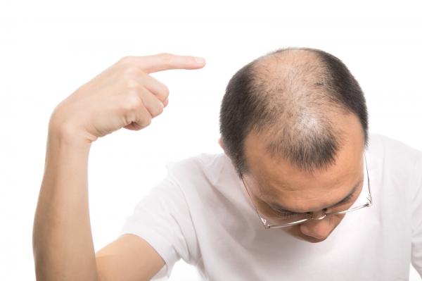 生え際、薄毛、オデコの広さ気になってる方へ!対策教えます。前編